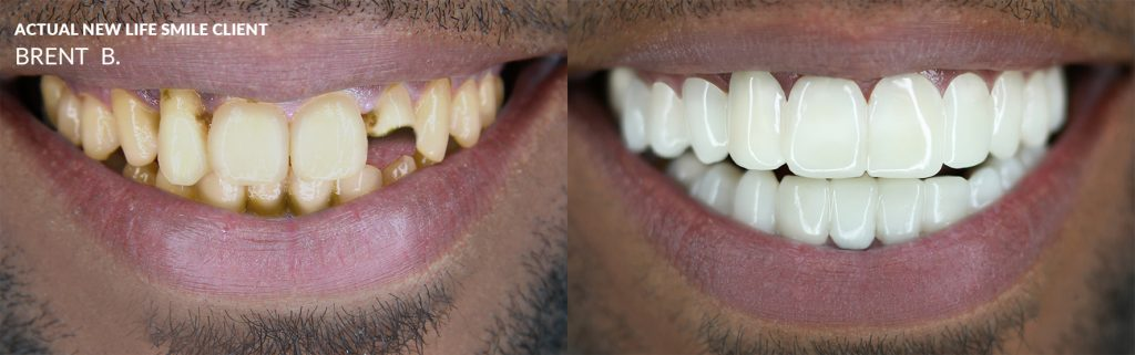 Actual New Life Smile Client Brent B.