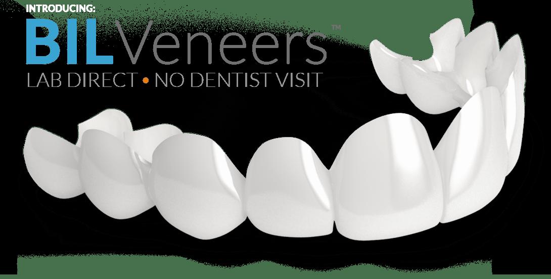 Bil Veneers - Lab Direct - No Dentist Visit